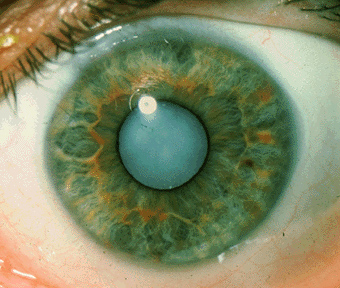 catarract