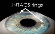 intacs-rings