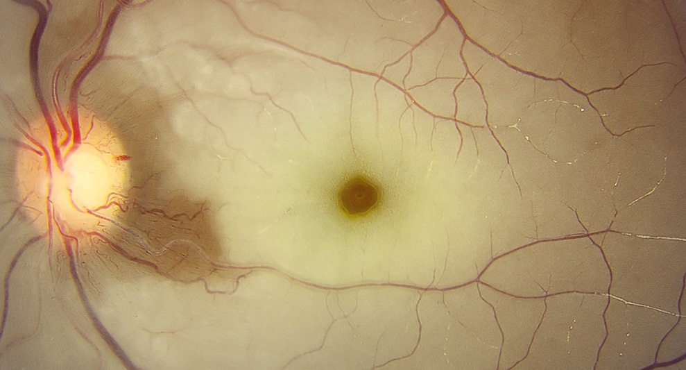 3 3 central retinal artery occlusion