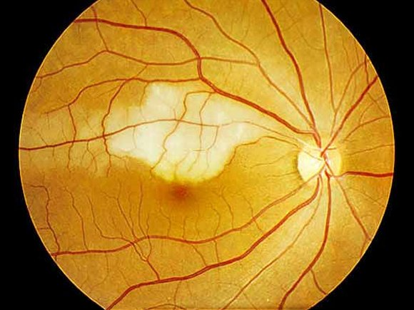 3 3 central retinal artery occlusion2